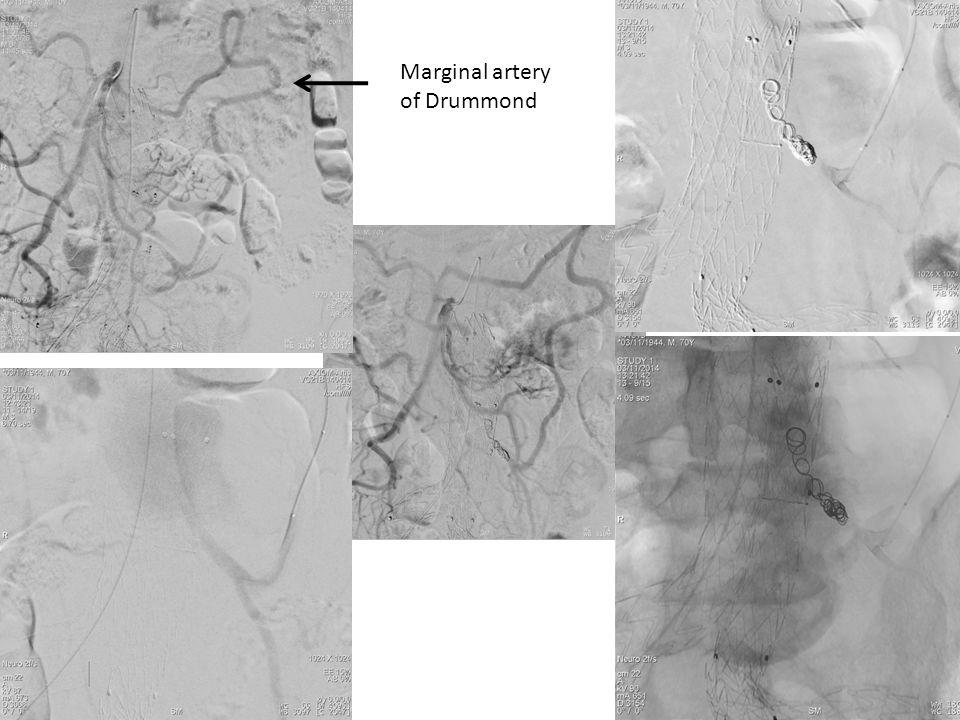 Marginal artery of Drummond