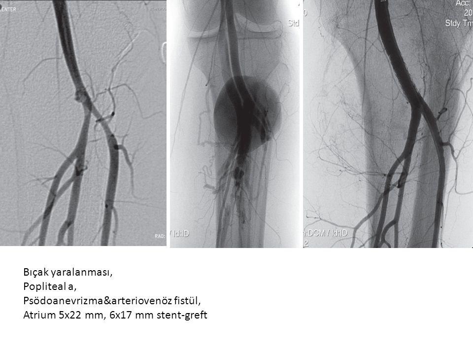 Bıçak yaralanması, Popliteal a, Psödoanevrizma&arteriovenöz fistül, Atrium 5x22 mm, 6x17 mm stent-greft