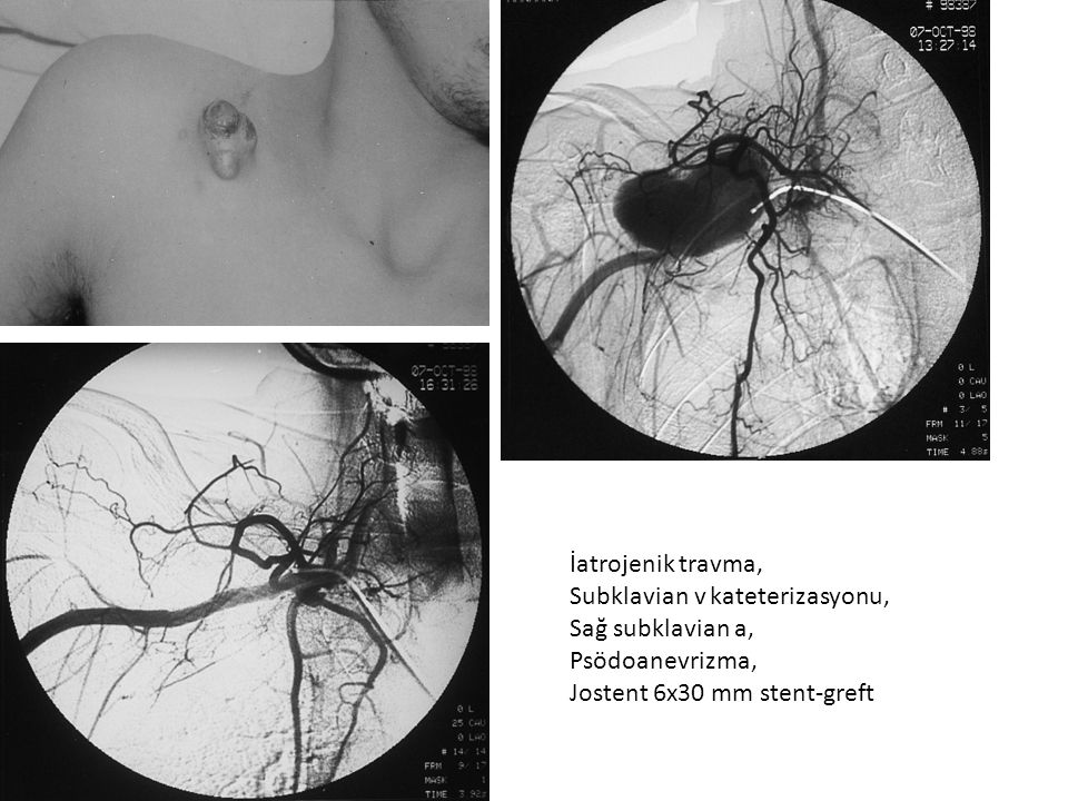 İatrojenik travma, Subklavian v kateterizasyonu, Sağ subklavian a, Psödoanevrizma, Jostent 6x30 mm stent-greft