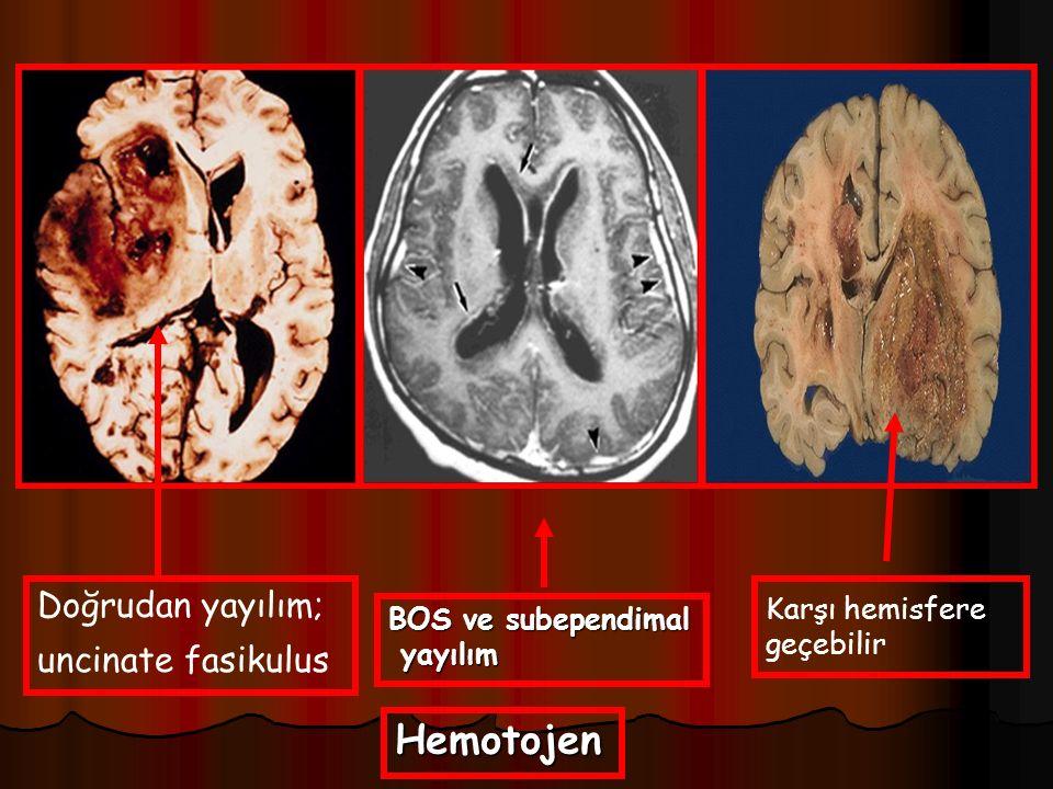 Karşı hemisfere geçebilir Doğrudan yayılım; uncinate fasikulus BOS ve subependimal yayılım yayılım Hemotojen