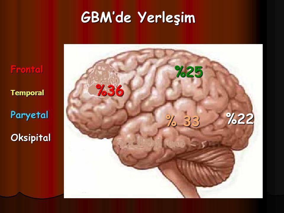 GBM'de Yerleşim %36 %25 %22 % 33 FrontalTemporalParyetalOksipital
