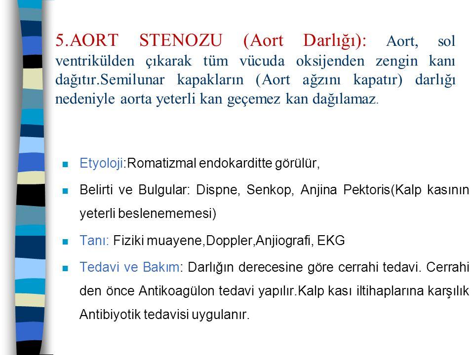 5.AORT STENOZU (Aort Darlığı): Aort, sol ventrikülden çıkarak tüm vücuda oksijenden zengin kanı dağıtır.Semilunar kapakların (Aort ağzını kapatır) dar
