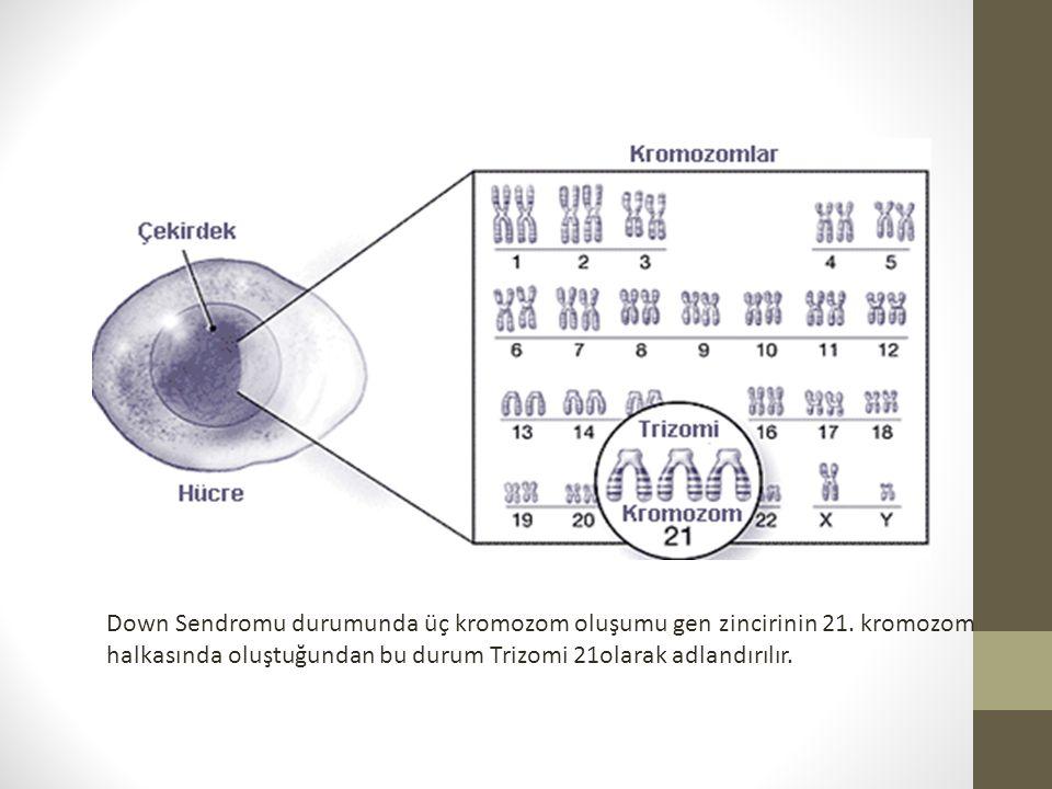Down Sendromu durumunda üç kromozom oluşumu gen zincirinin 21.