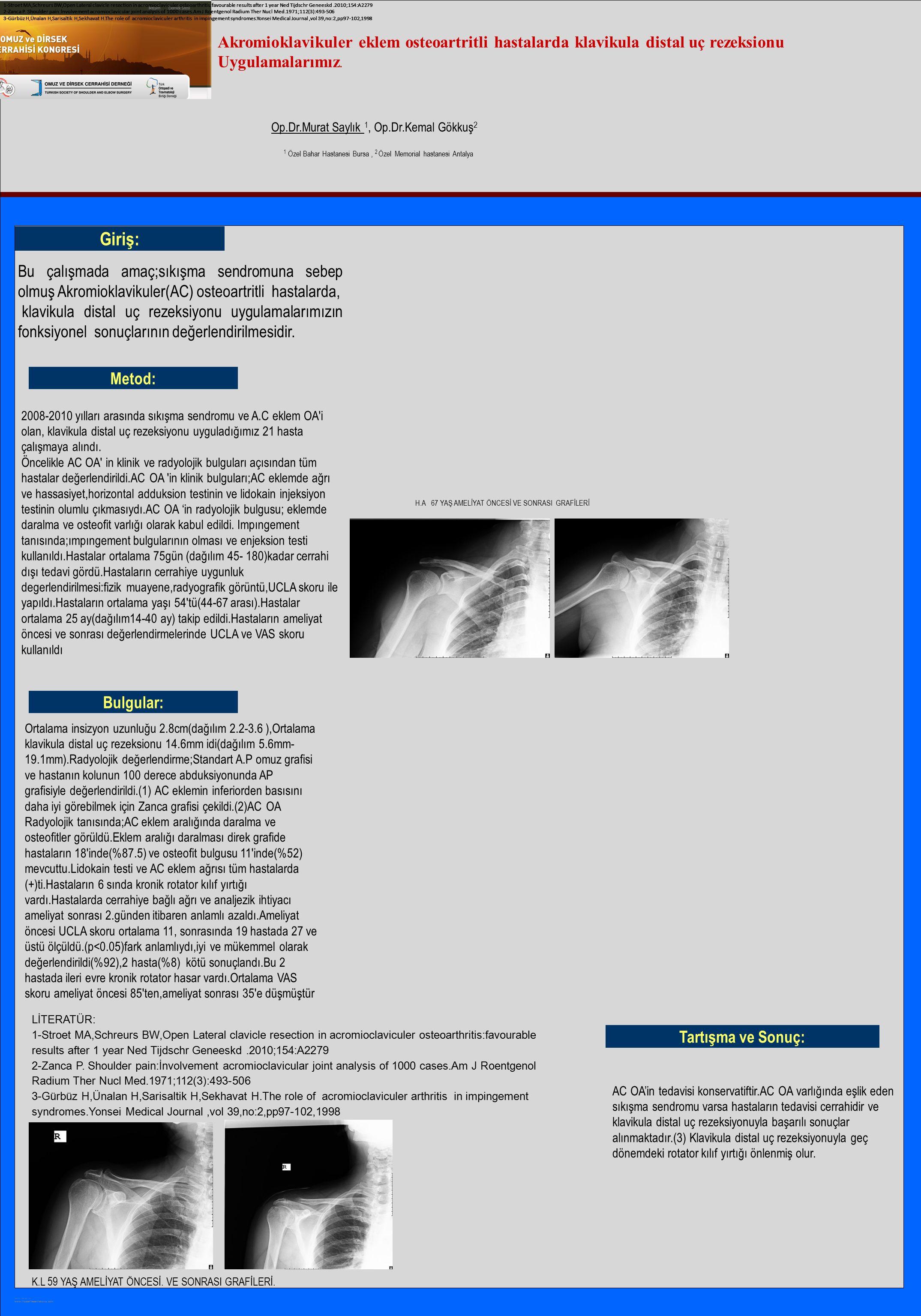 POSTER TEMPLATE BY: www.PosterPresentations.com Akromioklavikuler eklem osteoartritli hastalarda klavikula distal uç rezeksionu Uygulamalarımız. Giriş