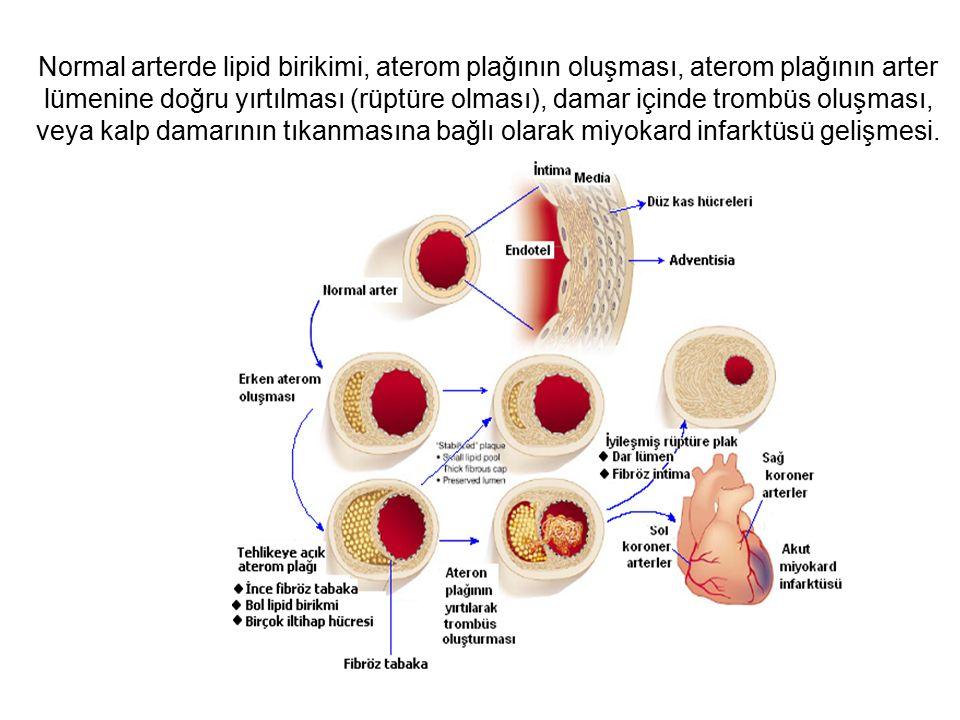 Normal arterde lipid birikimi, aterom plağının oluşması, aterom plağının arter lümenine doğru yırtılması (rüptüre olması), damar içinde trombüs oluşma