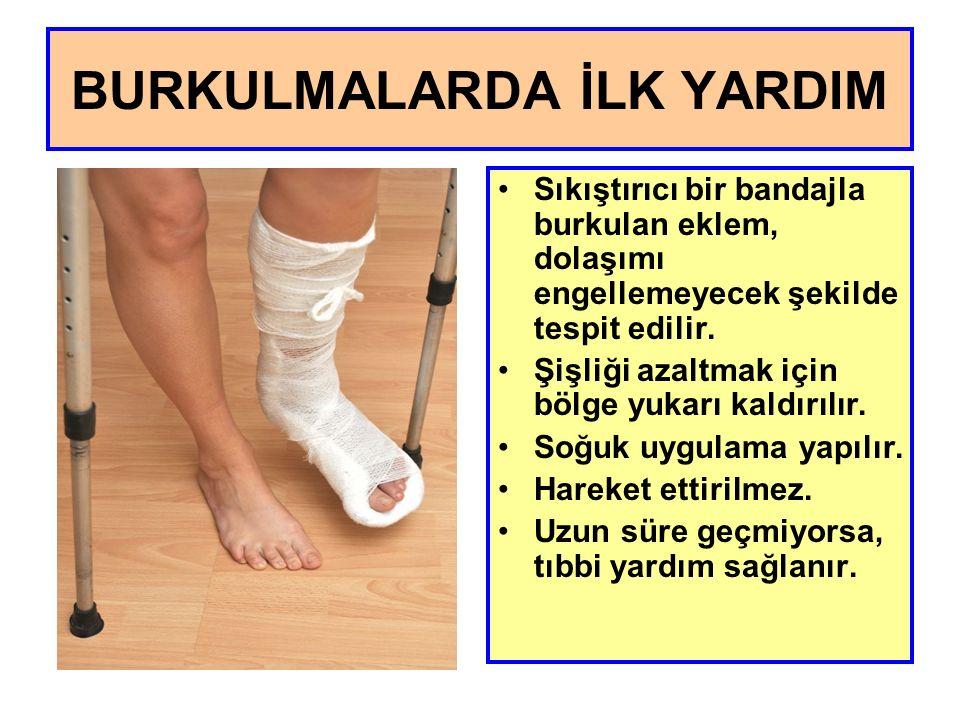 Sıkıştırıcı bir bandajla burkulan eklem, dolaşımı engellemeyecek şekilde tespit edilir.