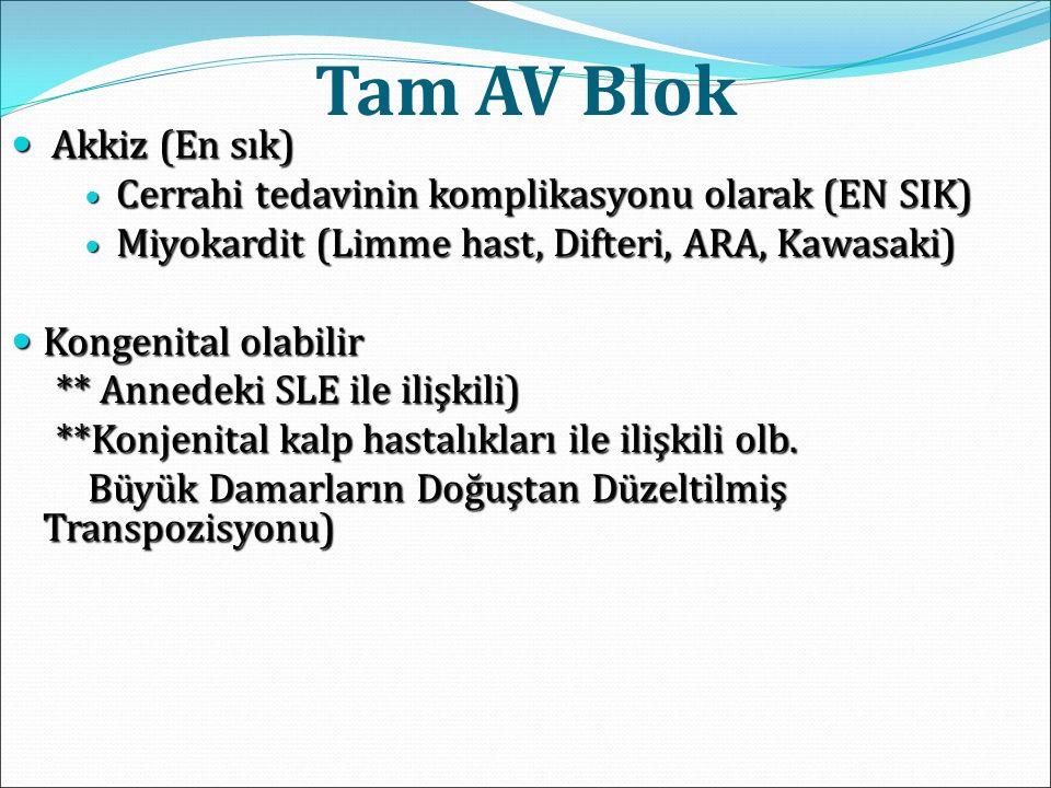 Tam AV Blok Akkiz (En sık) Akkiz (En sık) Cerrahi tedavinin komplikasyonu olarak (EN SIK) Cerrahi tedavinin komplikasyonu olarak (EN SIK) Miyokardit (