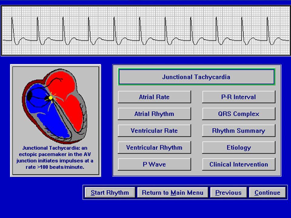 Nodal: Junctional Taşikardi Nodal Taşikardi de AVRT ve AVNRT'ler gibi genellikle P dalgalarının görülmediği, Dar QRS Taşikardilere yol açarlar.