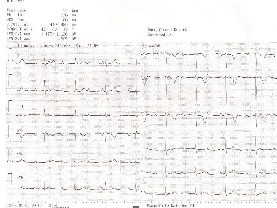 Tam AV Blok Akkiz (En sık) Akkiz (En sık) Cerrahi tedavinin komplikasyonu olarak (EN SIK) Cerrahi tedavinin komplikasyonu olarak (EN SIK) Miyokardit (Limme hast, Difteri, ARA, Kawasaki) Miyokardit (Limme hast, Difteri, ARA, Kawasaki) Kongenital olabilir Kongenital olabilir ** Annedeki SLE ile ilişkili) ** Annedeki SLE ile ilişkili) **Konjenital kalp hastalıkları ile ilişkili olb.