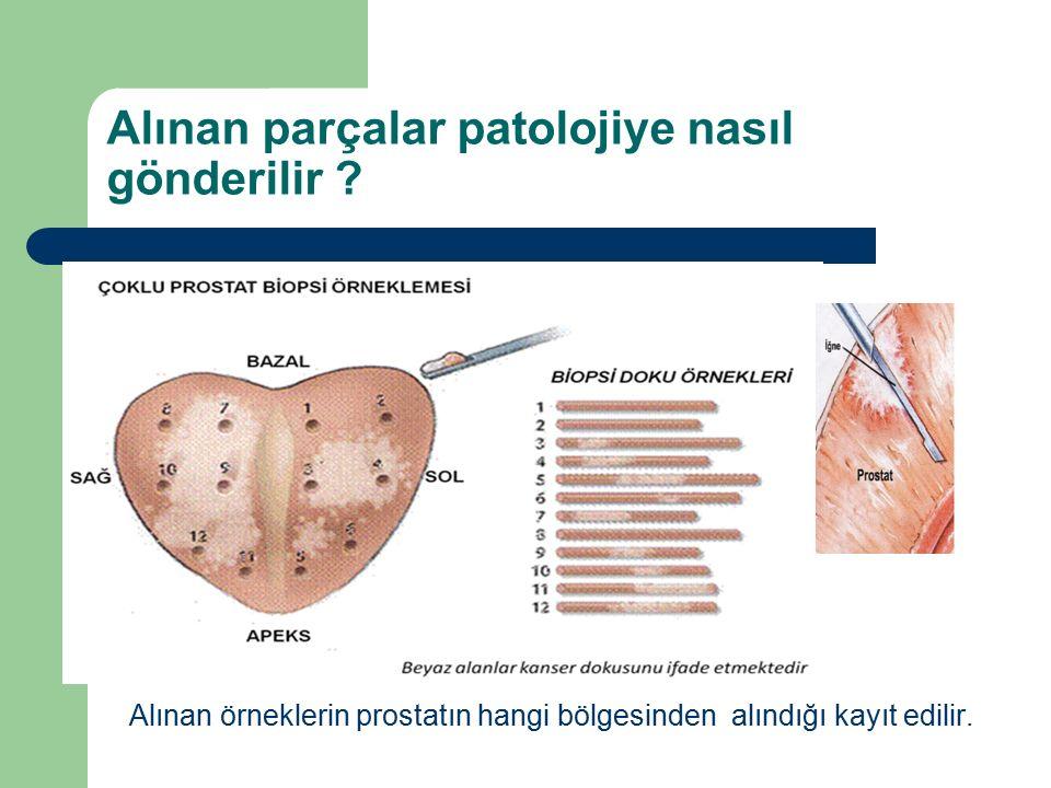 Alınan parçalar patolojiye nasıl gönderilir ? Alınan örneklerin prostatın hangi bölgesinden alındığı kayıt edilir.