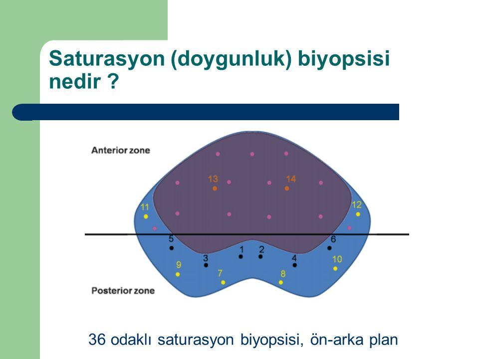 Saturasyon (doygunluk) biyopsisi nedir ? 36 odaklı saturasyon biyopsisi, ön-arka plan