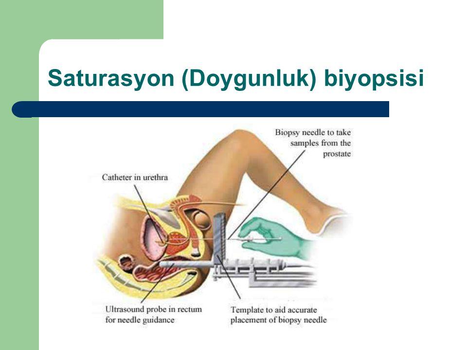 Saturasyon (Doygunluk) biyopsisi