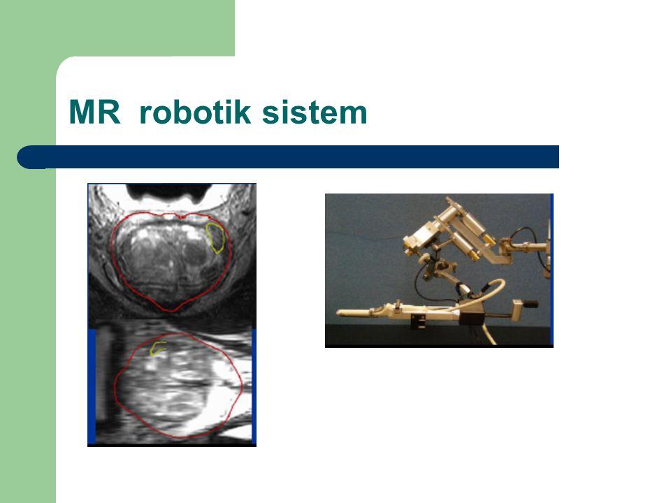 MR robotik sistem