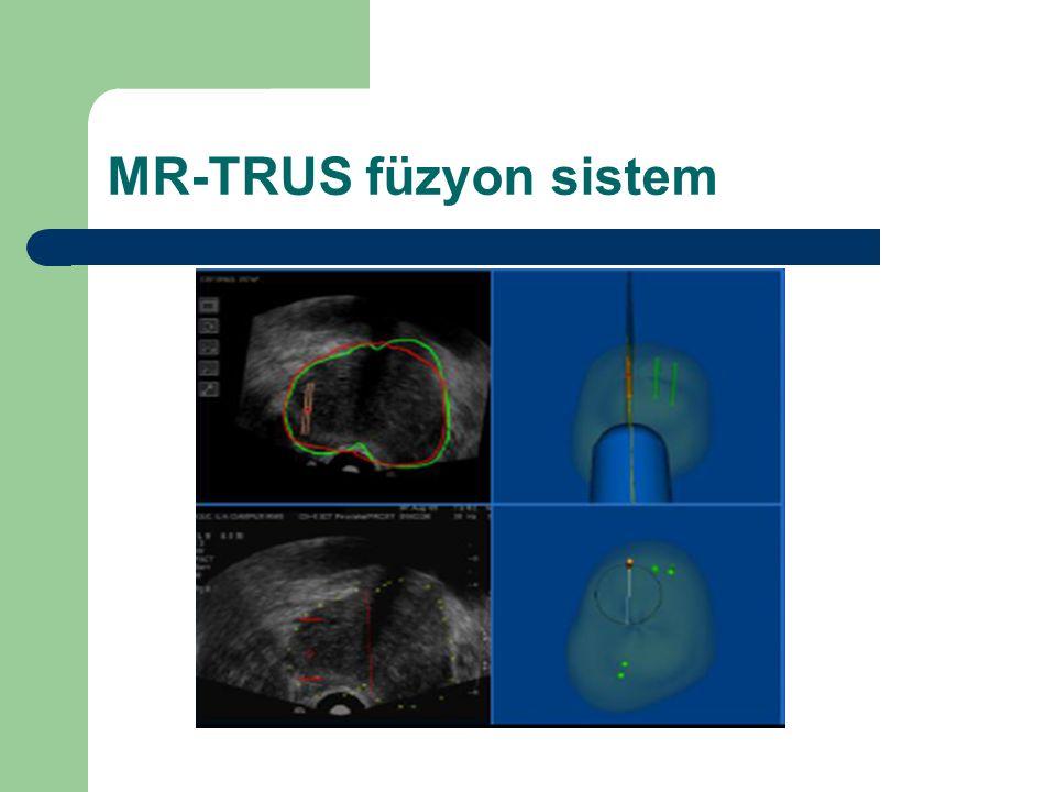 MR-TRUS füzyon sistem
