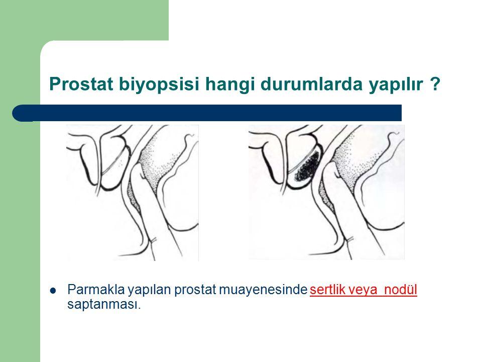 Prostat biyopsisi hangi durumlarda yapılır ? Parmakla yapılan prostat muayenesinde sertlik veya nodül saptanması.