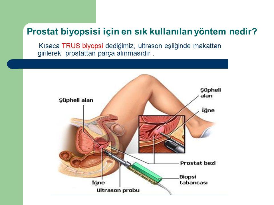 Prostat biyopsisi için en sık kullanılan yöntem nedir? Kısaca TRUS biyopsi dediğimiz, ultrason eşliğinde makattan girilerek prostattan parça alınmasıd