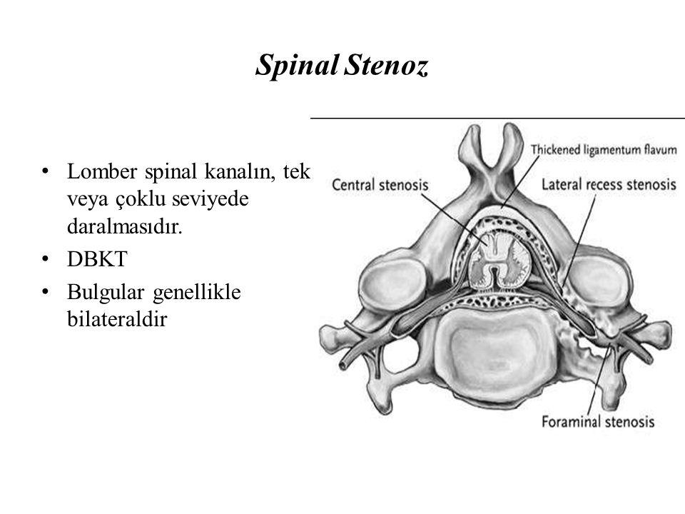 Spinal Stenoz Lomber spinal kanalın, tek veya çoklu seviyede daralmasıdır. DBKT Bulgular genellikle bilateraldir