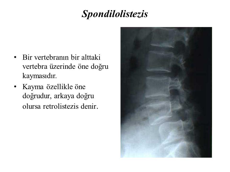 Spondilolistezis Bir vertebranın bir alttaki vertebra üzerinde öne doğru kaymasıdır. Kayma özellikle öne doğrudur, arkaya doğru olursa retrolistezis d