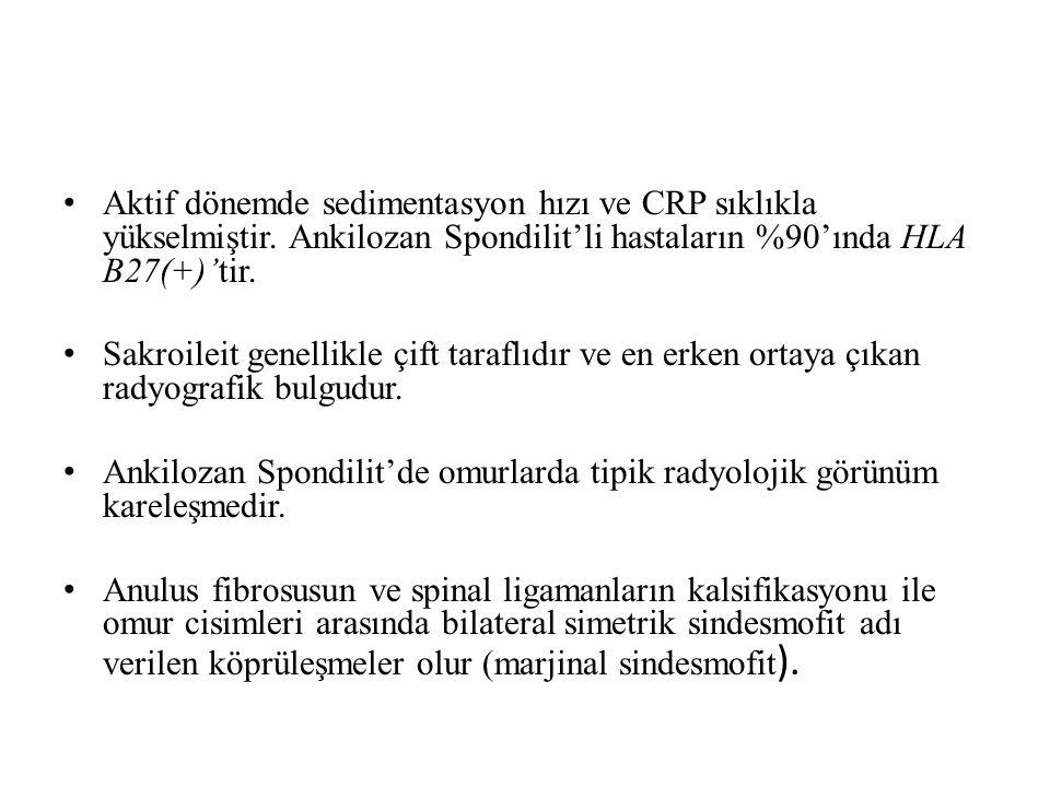 Aktif dönemde sedimentasyon hızı ve CRP sıklıkla yükselmiştir. Ankilozan Spondilit'li hastaların %90'ında HLA B27(+)'tir. Sakroileit genellikle çift t