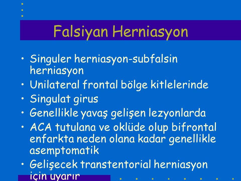 Falsiyan Herniasyon Singuler herniasyon-subfalsin herniasyon Unilateral frontal bölge kitlelerinde Singulat girus Genellikle yavaş gelişen lezyonlarda