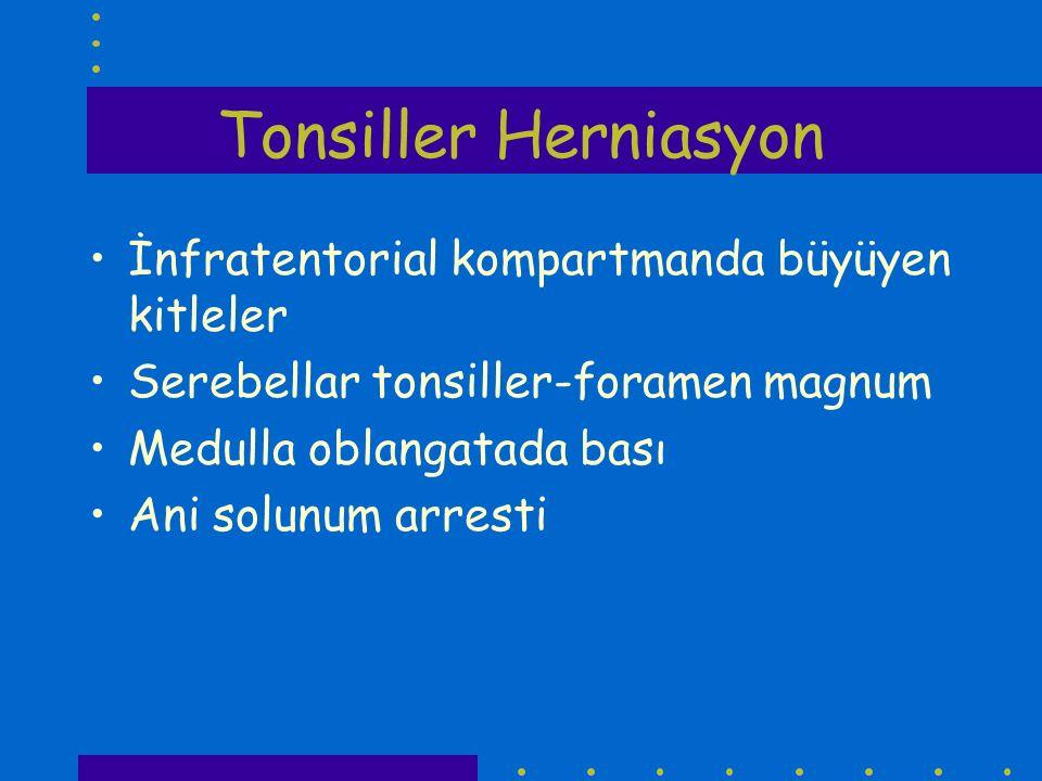 Tonsiller Herniasyon İnfratentorial kompartmanda büyüyen kitleler Serebellar tonsiller-foramen magnum Medulla oblangatada bası Ani solunum arresti