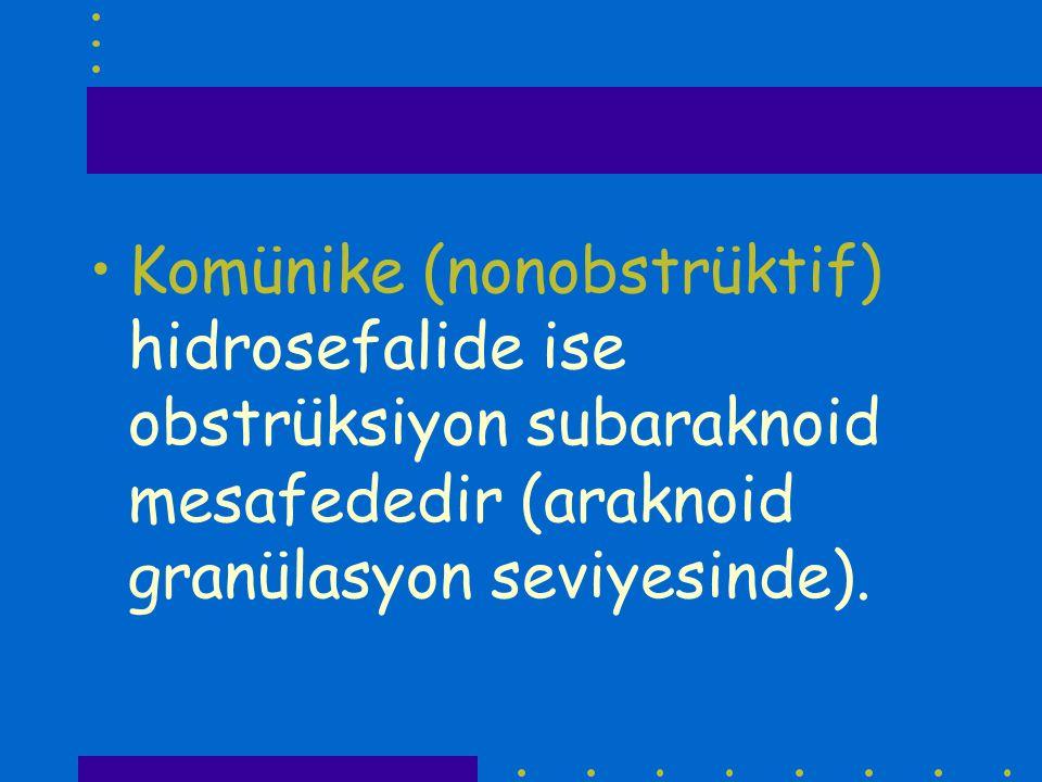 Komünike (nonobstrüktif) hidrosefalide ise obstrüksiyon subaraknoid mesafededir (araknoid granülasyon seviyesinde).