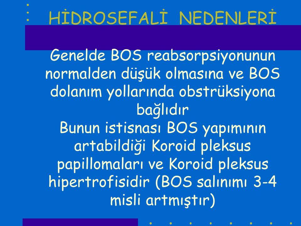 HİDROSEFALİ NEDENLERİ Genelde BOS reabsorpsiyonunun normalden düşük olmasına ve BOS dolanım yollarında obstrüksiyona bağlıdır Bunun istisnası BOS yapı