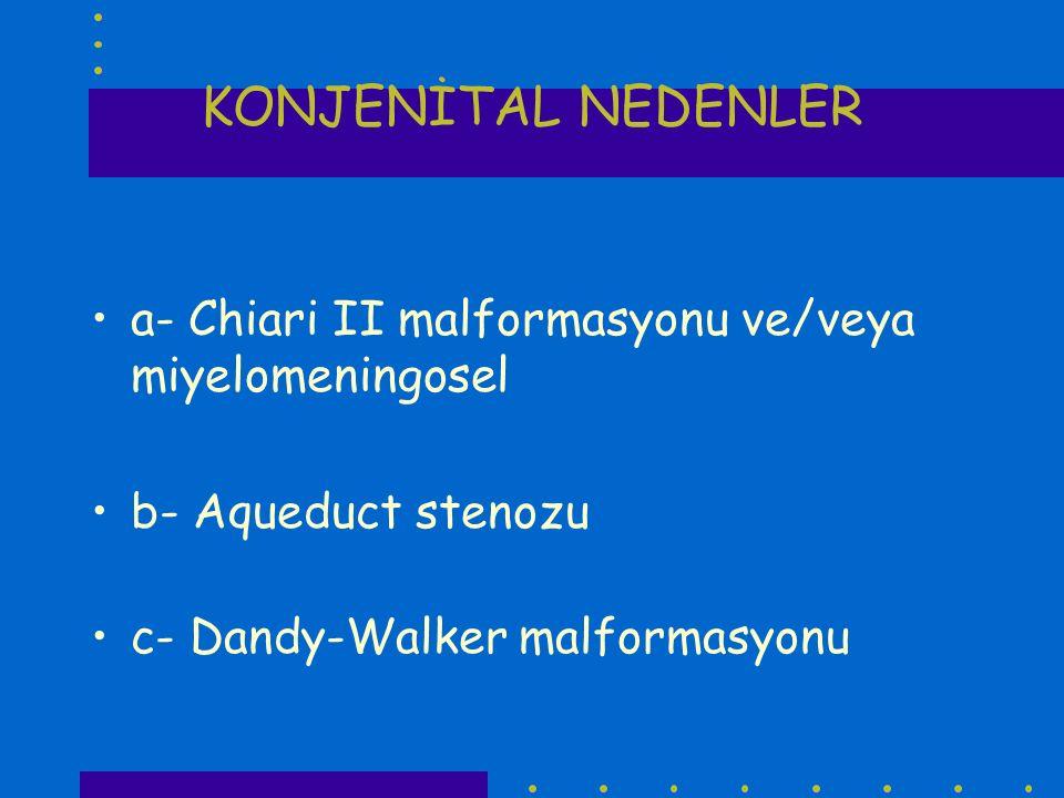 KONJENİTAL NEDENLER a- Chiari II malformasyonu ve/veya miyelomeningosel b- Aqueduct stenozu c- Dandy-Walker malformasyonu