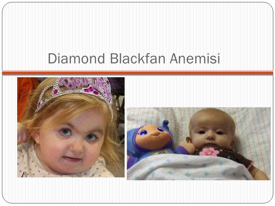 Diamond Blackfan Anemisi
