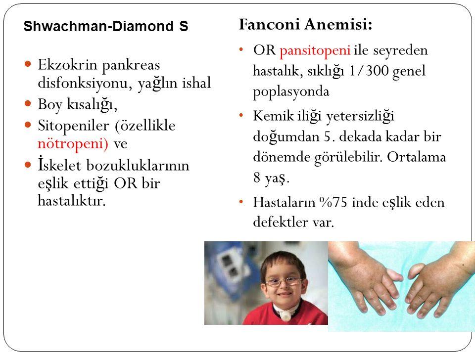 Shwachman-Diamond S Ekzokrin pankreas disfonksiyonu, ya ğ lın ishal Boy kısalı ğ ı, Sitopeniler (özellikle nötropeni) ve İ skelet bozukluklarının e ş lik etti ğ i OR bir hastalıktır.