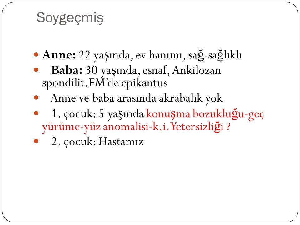Fizik muayene Kilo: 8 kg(10 p) Boy: 74 cm (25-500p) B.Çevresi: 43 cm (<3p)