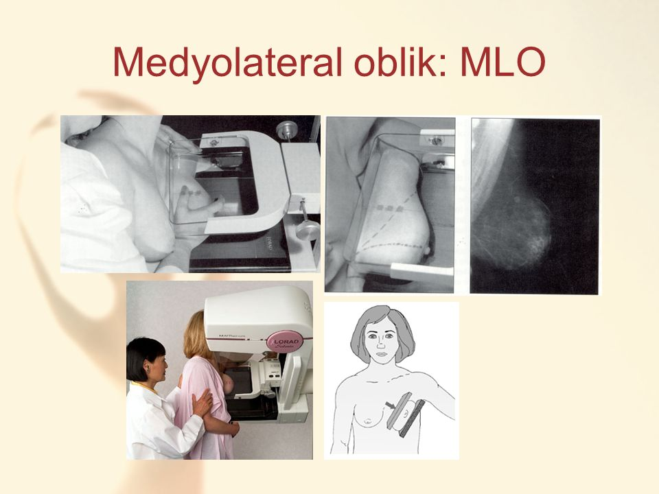 Medyolateral oblik: MLO