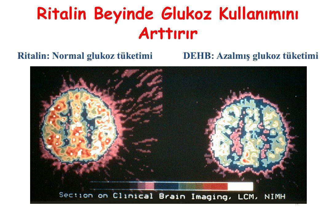 40 Ritalin Beyinde Glukoz Kullanımını Arttırır DEHB: Azalmış glukoz tüketimiRitalin: Normal glukoz tüketimi