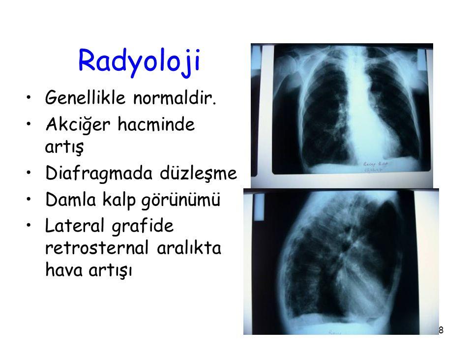 28 Radyoloji Genellikle normaldir.