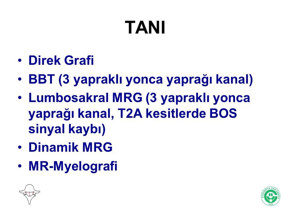 TANI Direk Grafi BBT (3 yapraklı yonca yaprağı kanal) Lumbosakral MRG (3 yapraklı yonca yaprağı kanal, T2A kesitlerde BOS sinyal kaybı) Dinamik MRG MR