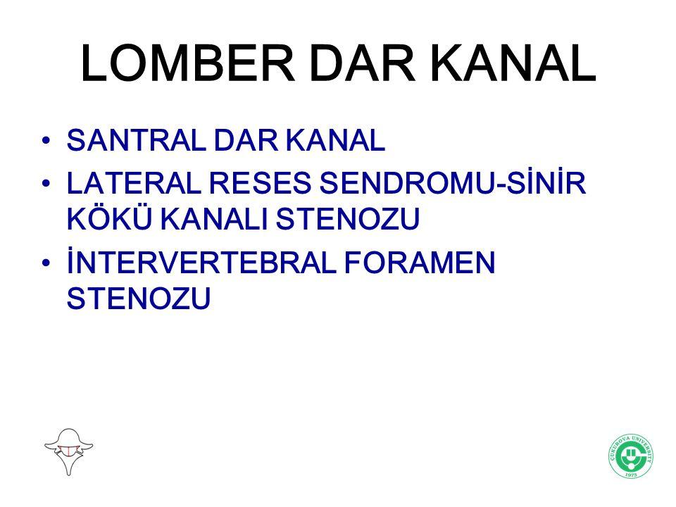 LOMBER DAR KANAL Lomber dar kanal, spinal kanalın ve/veya sinir kökü kanalının ve/veya interverebral foramenin AP uzunluğunun kritik bir değerin altına daralmasıdır