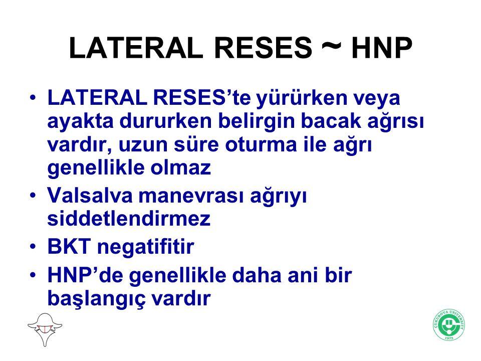 LATERAL RESES ~ HNP LATERAL RESES'te yürürken veya ayakta dururken belirgin bacak ağrısı vardır, uzun süre oturma ile ağrı genellikle olmaz Valsalva m