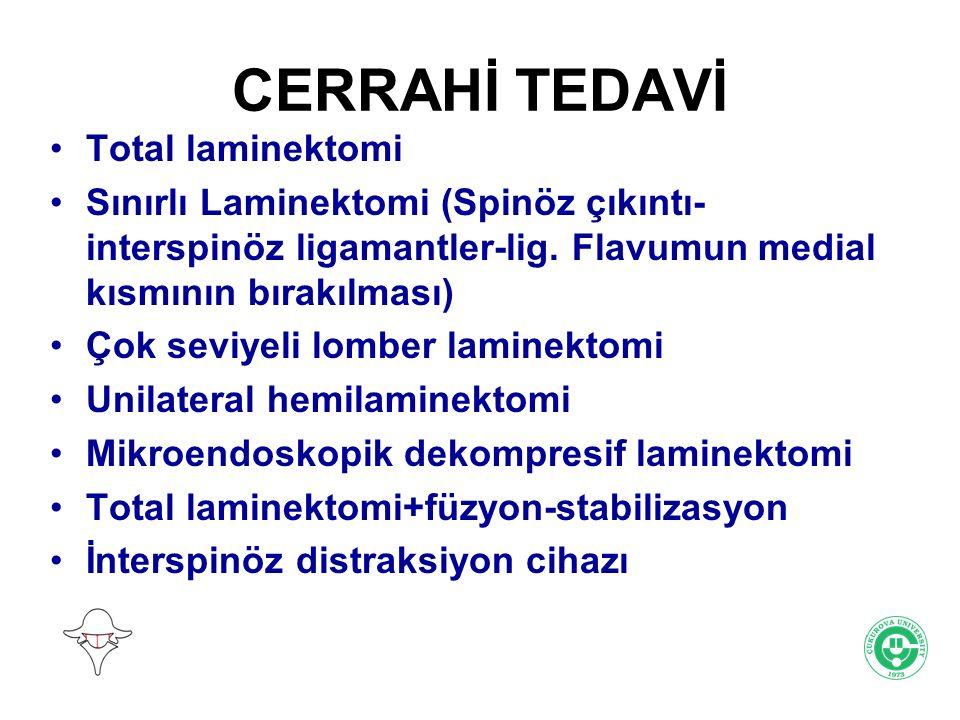 CERRAHİ TEDAVİ Total laminektomi Sınırlı Laminektomi (Spinöz çıkıntı- interspinöz ligamantler-lig. Flavumun medial kısmının bırakılması) Çok seviyeli