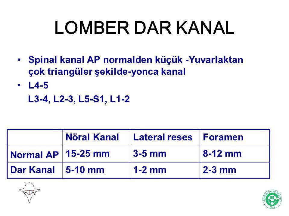 LOMBER DAR KANAL Spinal kanal AP normalden küçük -Yuvarlaktan çok triangüler şekilde-yonca kanal L4-5 L3-4, L2-3, L5-S1, L1-2 Nöral KanalLateral reses
