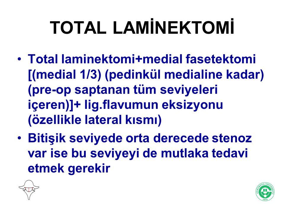 TOTAL LAMİNEKTOMİ Total laminektomi+medial fasetektomi [(medial 1/3) (pedinkül medialine kadar) (pre-op saptanan tüm seviyeleri içeren)]+ lig.flavumun