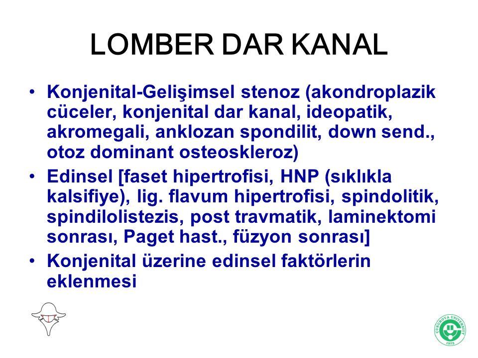 LOMBER DAR KANAL Konjenital-Gelişimsel stenoz (akondroplazik cüceler, konjenital dar kanal, ideopatik, akromegali, anklozan spondilit, down send., oto