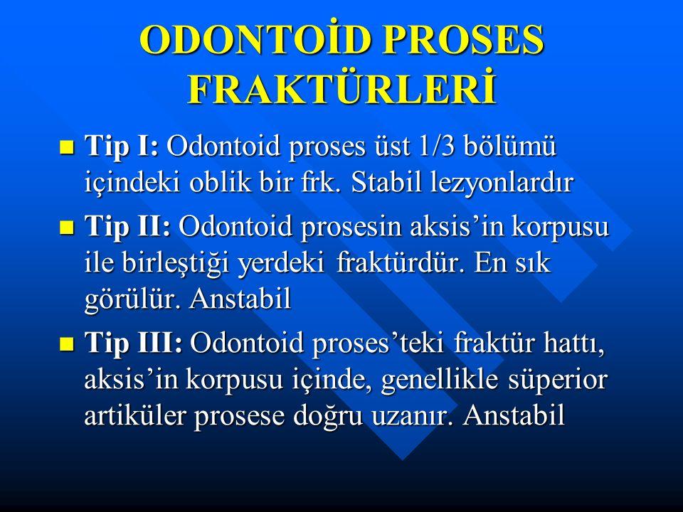 ODONTOİD PROSES FRAKTÜRLERİ Tip I: Odontoid proses üst 1/3 bölümü içindeki oblik bir frk. Stabil lezyonlardır Tip I: Odontoid proses üst 1/3 bölümü iç