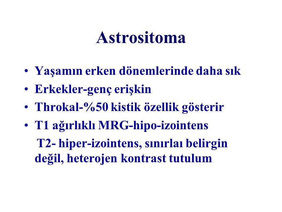 Astrositoma Yaşamın erken dönemlerinde daha sık Erkekler-genç erişkin Throkal-%50 kistik özellik gösterir T1 ağırlıklı MRG-hipo-izointens T2- hiper-iz