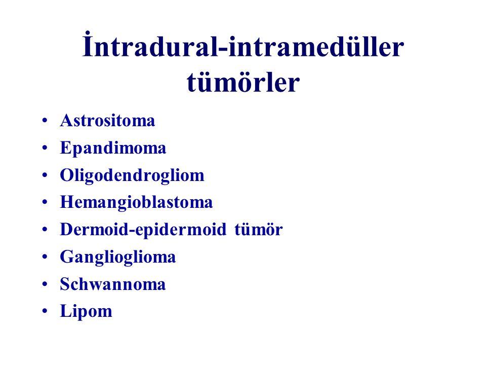İntradural-intramedüller tümörler Astrositoma Epandimoma Oligodendrogliom Hemangioblastoma Dermoid-epidermoid tümör Ganglioglioma Schwannoma Lipom