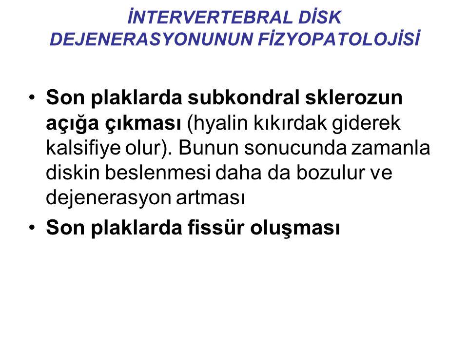 İNTERVERTEBRAL DİSK DEJENERASYONUNUN FİZYOPATOLOJİSİ Son plaklarda subkondral sklerozun açığa çıkması (hyalin kıkırdak giderek kalsifiye olur).