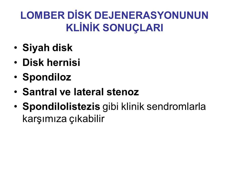 LOMBER DİSK DEJENERASYONUNUN KLİNİK SONUÇLARI Siyah disk Disk hernisi Spondiloz Santral ve lateral stenoz Spondilolistezis gibi klinik sendromlarla karşımıza çıkabilir