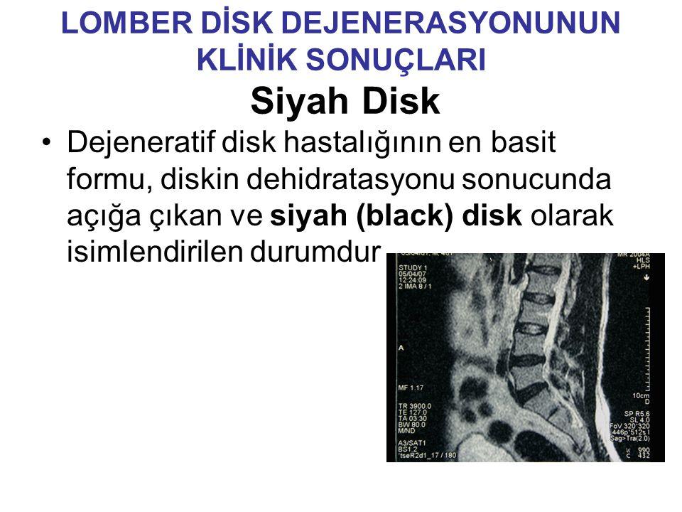 LOMBER DİSK DEJENERASYONUNUN KLİNİK SONUÇLARI Siyah Disk Dejeneratif disk hastalığının en basit formu, diskin dehidratasyonu sonucunda açığa çıkan ve siyah (black) disk olarak isimlendirilen durumdur