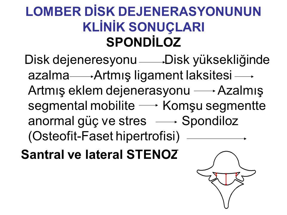 LOMBER DİSK DEJENERASYONUNUN KLİNİK SONUÇLARI SPONDİLOZ Disk dejeneresyonu Disk yüksekliğinde azalma Artmış ligament laksitesi Artmış eklem dejenerasyonu Azalmış segmental mobilite Komşu segmentte anormal güç ve stres Spondiloz (Osteofit-Faset hipertrofisi) Santral ve lateral STENOZ