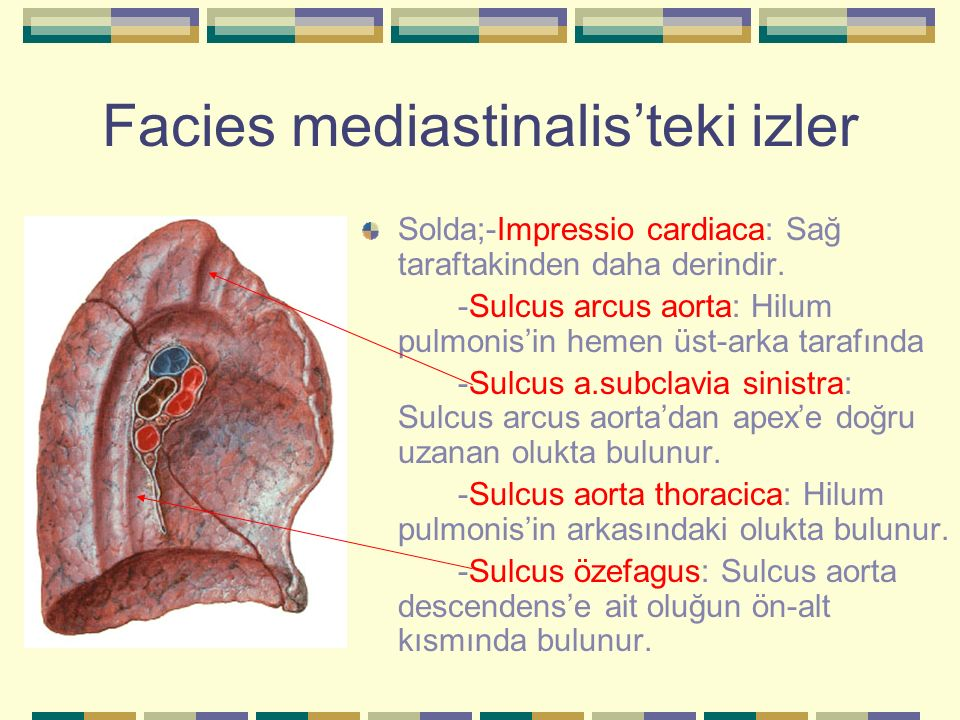 Facies mediastinalis'teki izler Solda;-Impressio cardiaca: Sağ taraftakinden daha derindir. -Sulcus arcus aorta: Hilum pulmonis'in hemen üst-arka tara