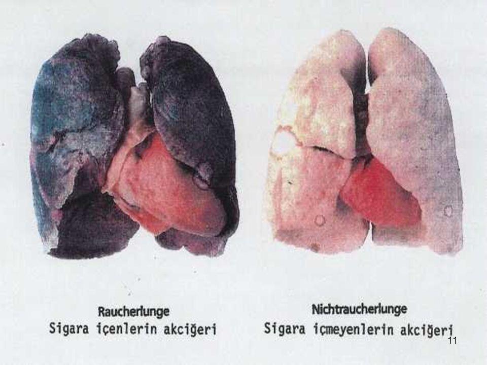 Gırtlak kanseri  Günde 25 tane sigara, içmeyen insanlar göre, 30 kat daha fazla gırtlak kanserine neden olur.